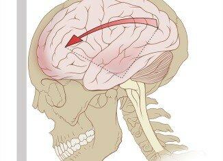Симптомы при сотрясении головы