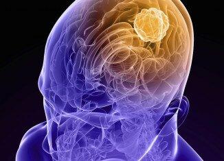 Симптомы и признаки опухоли в голове