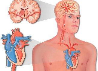 Как проявляется инсульт ишемический
