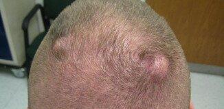 Можно ли удалять жировики на голове и как лечить